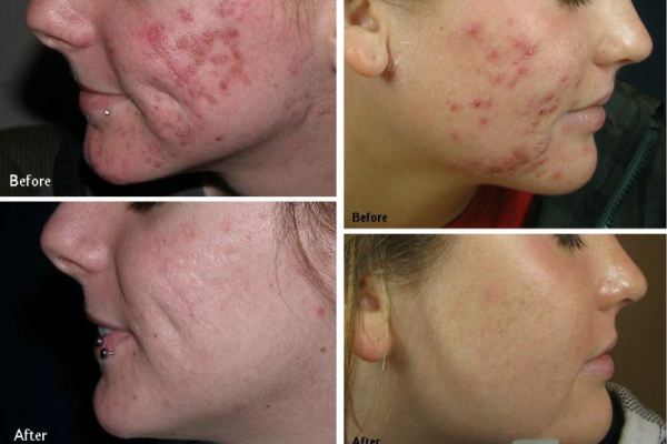 acne_before_after1